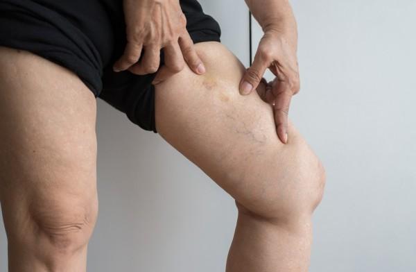Entenda a trombose e saiba como as meias de compressão podem ajudar na sua recuperação.